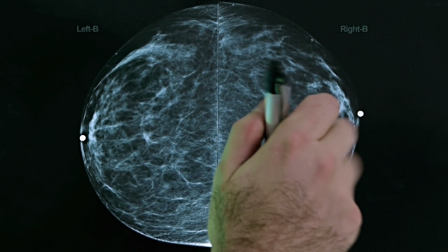 Guidelines That Will Help You Trace The Finest And Precise Mammograms Health Facility In Your Area